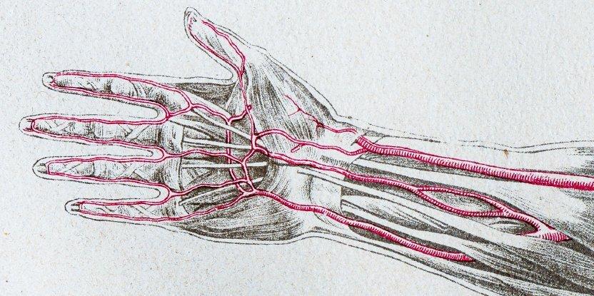 median_artery_persist_body